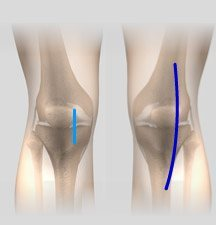 What is the recovery process for a minimally invasive total knee replacement?