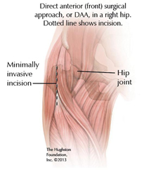 Direct Anterior Hip Incision